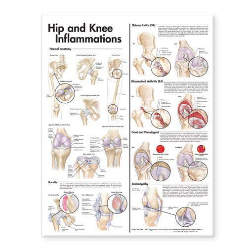 Hip and Knee Inflammations Anatomical Chart par  Anatomical Chart Company