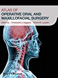 Details: Atlas of Operative Oral and Maxillofacial Surgery