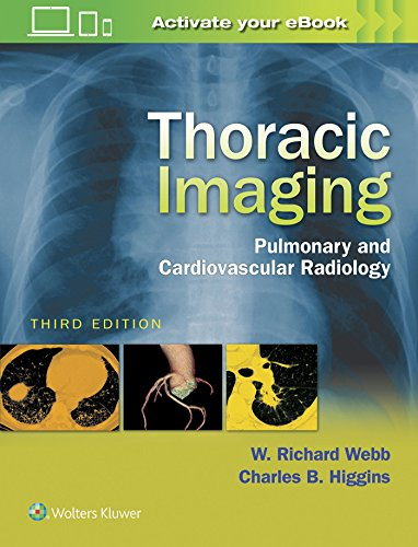 Thoracic Imaging : Pulmonary and Cardiovascular Radiology