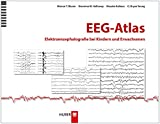 Details: EEG-Atlas